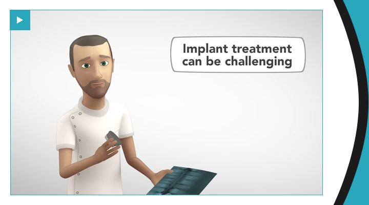 Implantology the digital way by 3Shape